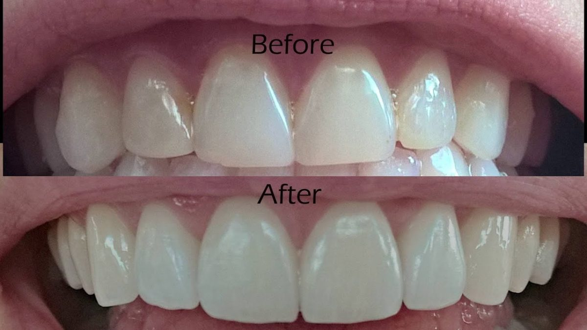 Planning to have dental veneers for your teeth